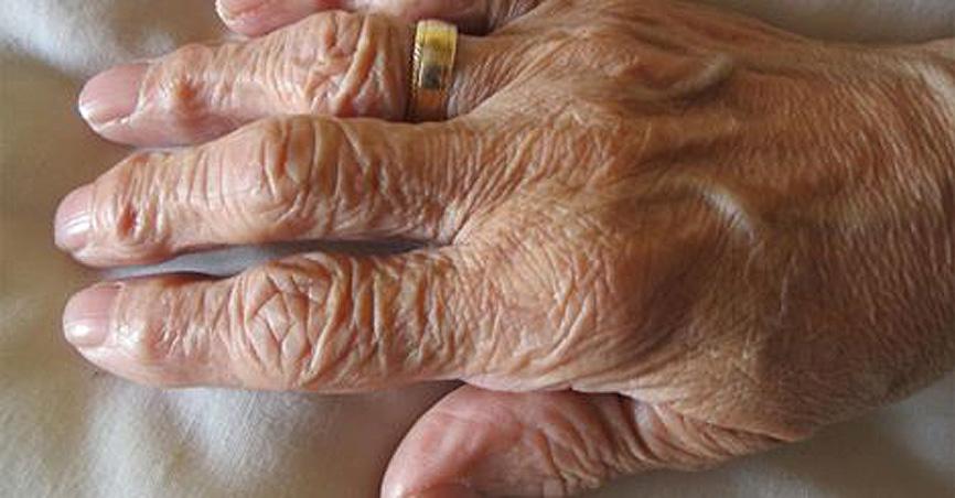 Reversing Memory Loss in Alzeimer's patients.